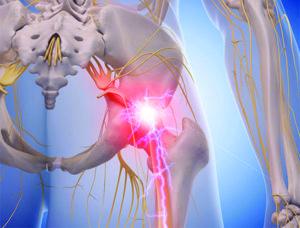 Sindrome-del-Piriforme_studio_fisioterapia_osteopatia_avola